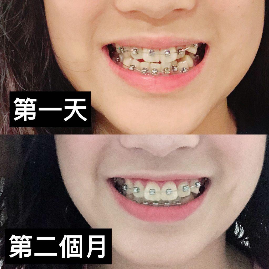 兩個月牙套 - 牙齒矯正板   Dcard