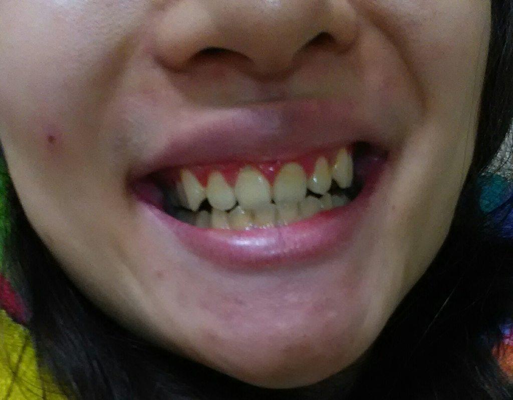 普麗斯牙齒美白心得 - 美妝板 | Dcard