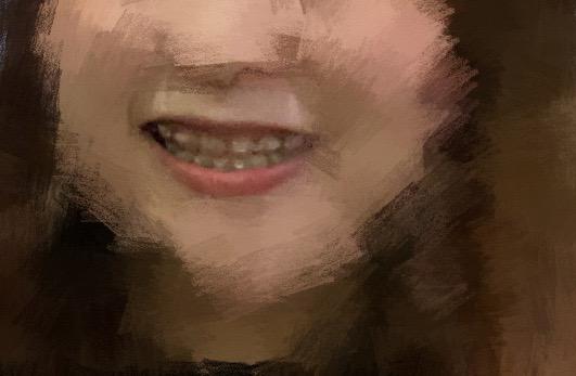 #問 快要拆矯正器了。卻覺得上排牙齒很內傾!該怎麼辦? - 牙齒矯正板   Dcard
