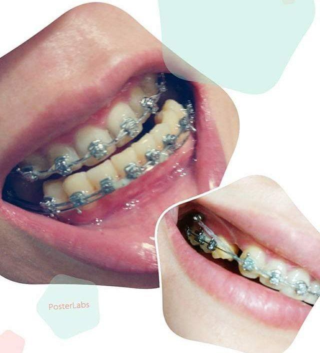 媲美整形的牙齒矯正[附比較圖] - 牙齒矯正板 | Dcard