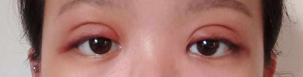 #更1090722#圖多#縫雙眼皮超快恢復期 - 美妝板 | Dcard