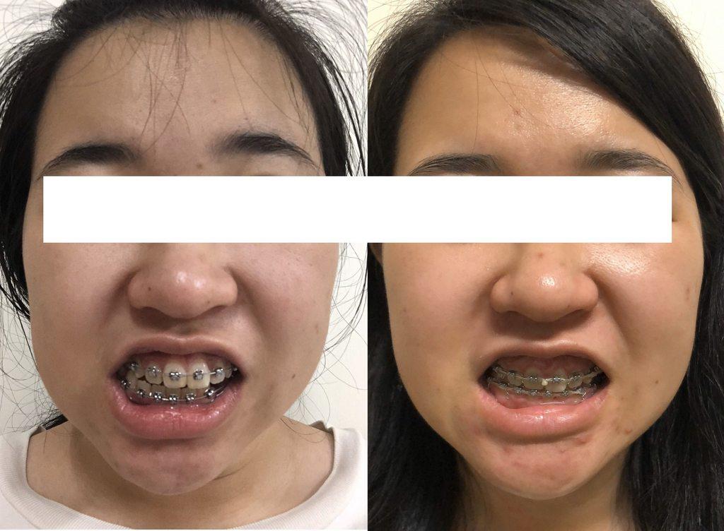 矯正分享-無正顎純矯正的歪臉(矯正中) - 牙齒矯正板 | Dcard