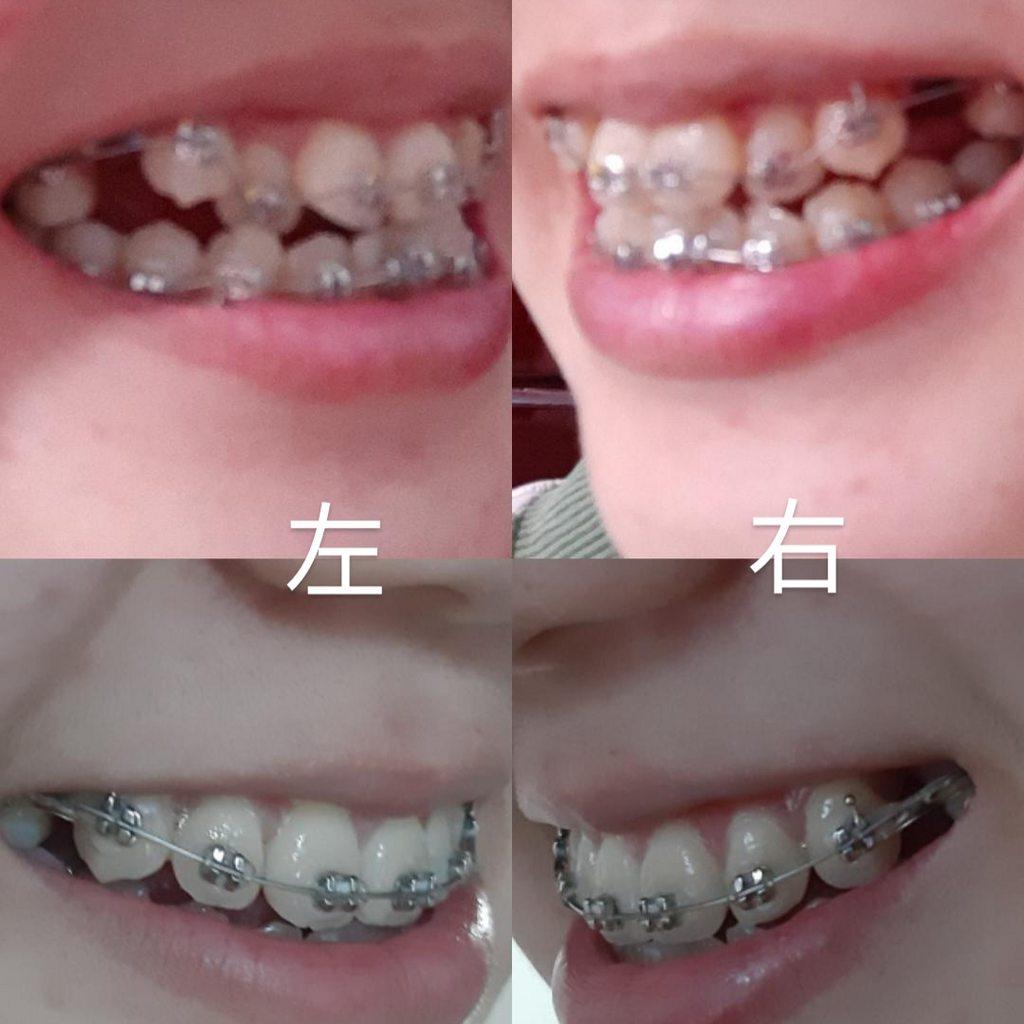 戴牙套兩個月變化 - 牙齒矯正板 | Dcard