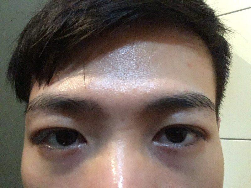 請問輕微眼袋加黑眼圈醫美的選擇 - 美妝板 | Dcard