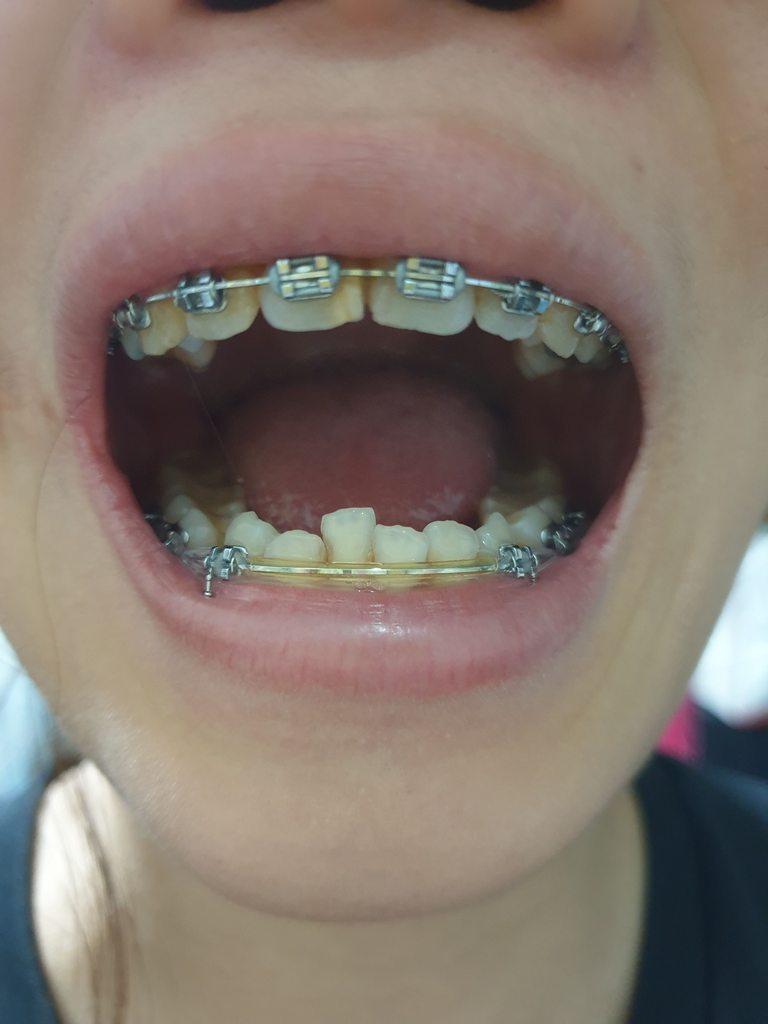 #圖 正顎手術QA 及 術前術後照分享 - 牙齒矯正板 | Dcard