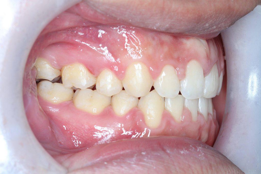 矯正前後的改變 (圖多 - 牙齒矯正板 | Dcard