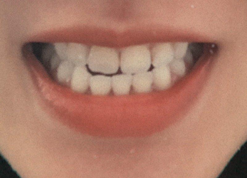 #問 牙套維持器微調 - 閒聊板 | Dcard