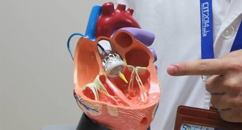 微創手術「開心不開胸」 奇美造福心臟病患 - 翻爆 - 翻報