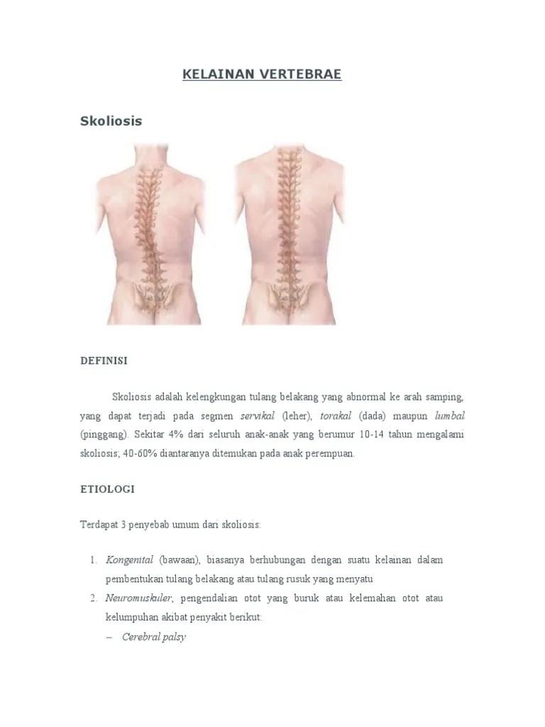 Kelainan Pada Tulang Belakang Yang Bengkok Ke Samping Disebut : kelainan, tulang, belakang, bengkok, samping, disebut, Kelainan, Vertebrae
