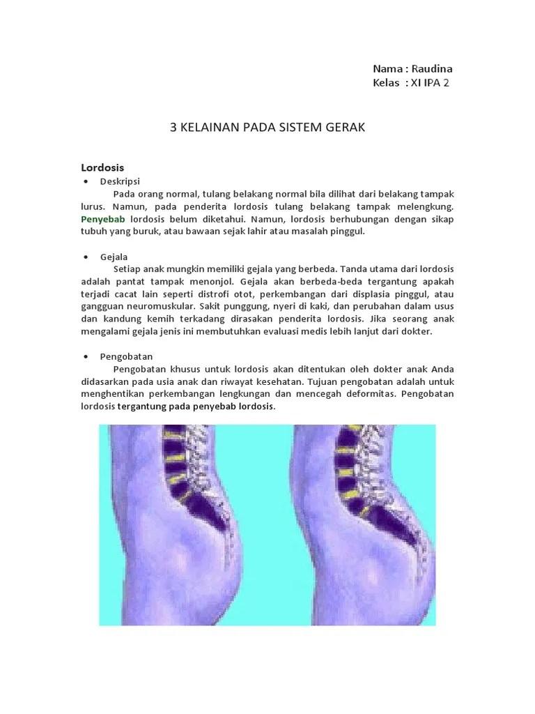 3 Kelainan Pada Tulang : kelainan, tulang, Kelainan, Sistem, Gerak