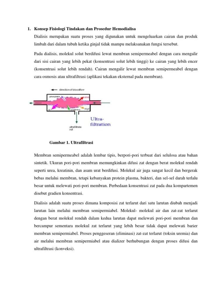 Semipermeabel Adalah : semipermeabel, adalah, Konsep, Fisiologi, Tindakan, Prosedur, Hemodialisa