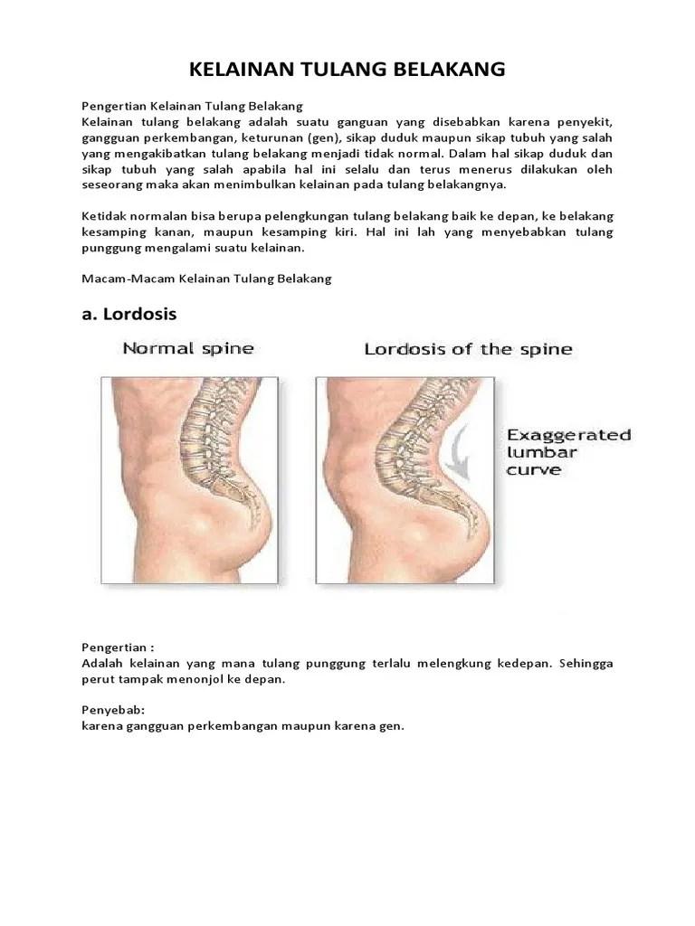 Kelainan Pada Tulang Belakang Yang Bengkok Ke Samping Disebut : kelainan, tulang, belakang, bengkok, samping, disebut, KELAINAN, TULANG, BELAKANG