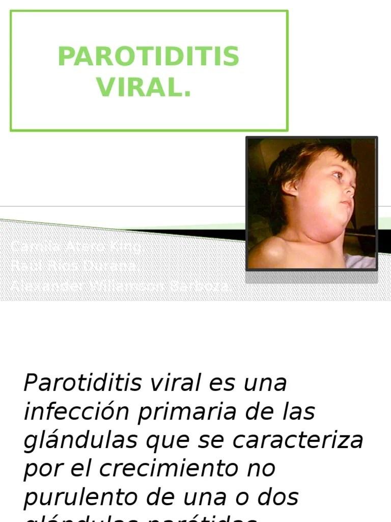 Parotiditis Viral | Virus | Especialidades Medicas