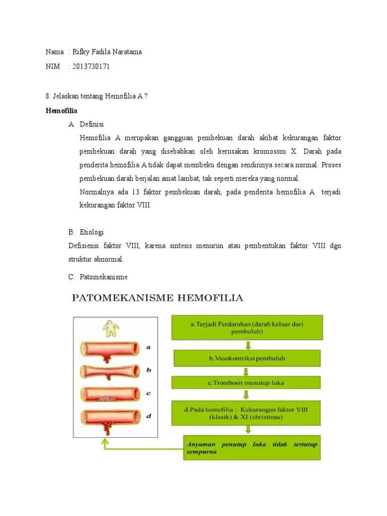 Mengapa Darah Penderita Hemofilia Sukar Membeku : mengapa, darah, penderita, hemofilia, sukar, membeku, Hemofilia