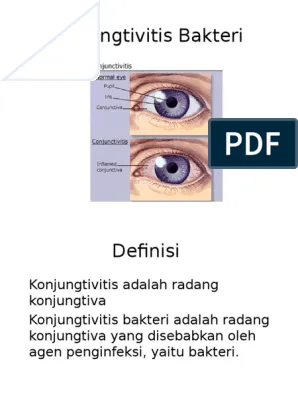 Konjungtivitis Bakteri Pdf : konjungtivitis, bakteri, Konjungtivitis, Bakteri, Trakoma