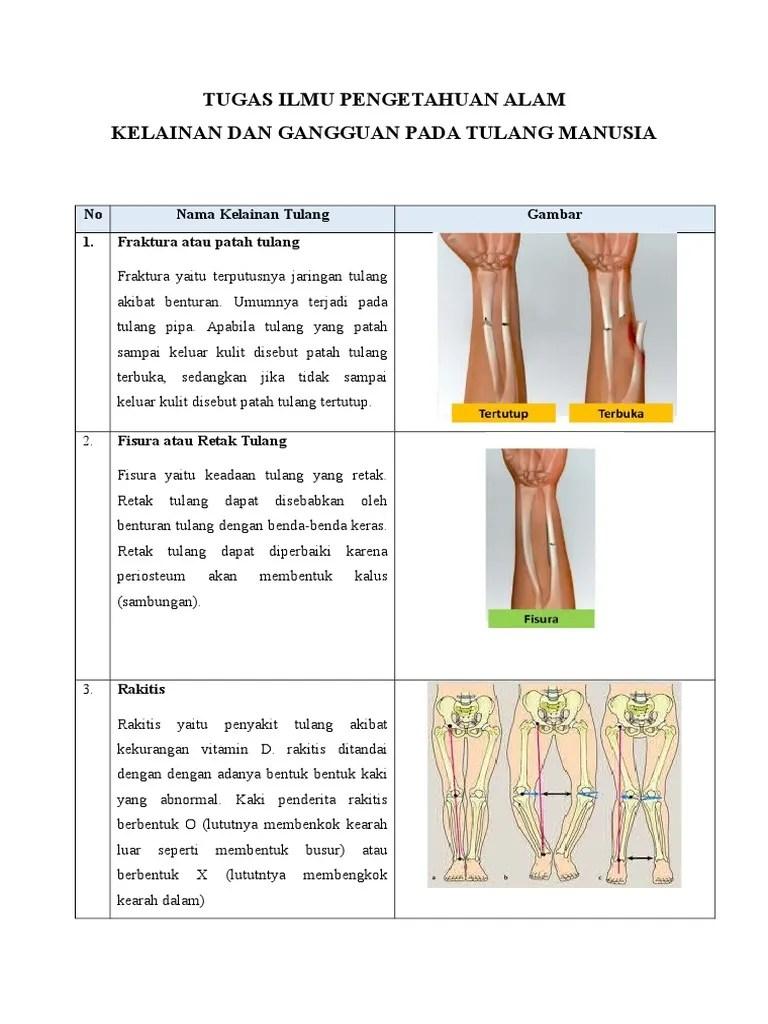 Buku Kelas XI SMA/MA - Gangguan & Kelainan pada Tulang