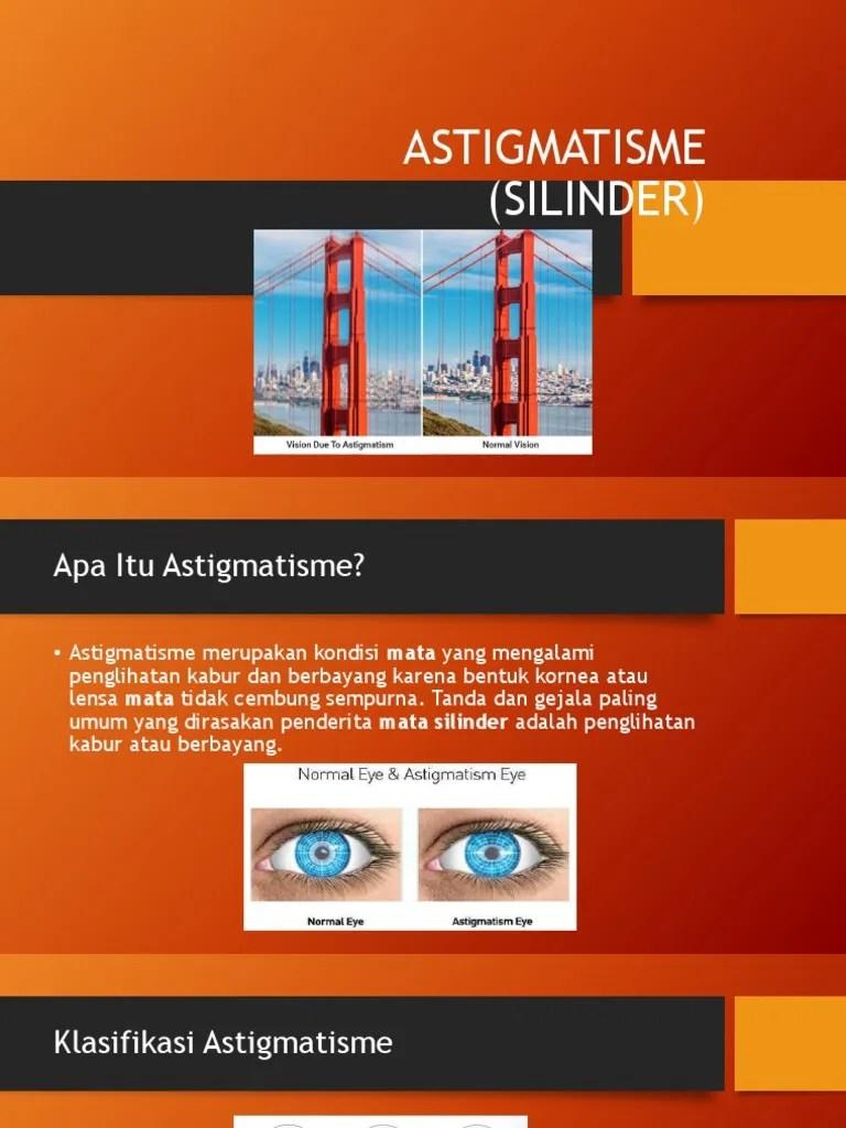 Penglihatan Berbayang : penglihatan, berbayang, Astigmatism