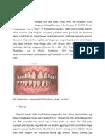 Kode Icd 10 Ginggivitis : ginggivitis