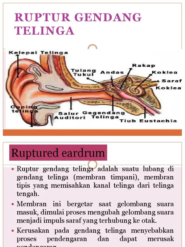 Tanda Gendang Telinga Pecah : tanda, gendang, telinga, pecah, Ruptur, Gendang, Telinga
