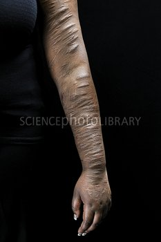 Scars due to self harm