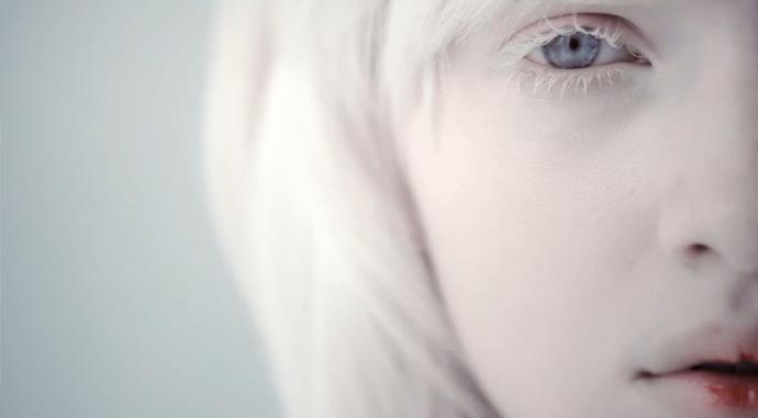 albino lesbian