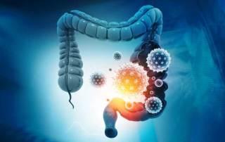 perméabilité intestinale et Covid long