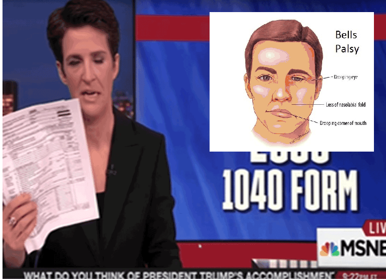 Rachel Maddow's Bell's Palsy Will Worsen With Each Lie
