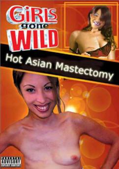 2955_hot_asian_mastecomy