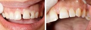 Esztétikus fogtömés - esztétikai fogászat