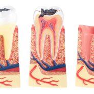 A fogszuvasodás kialakulása, tünetei és megelőzése