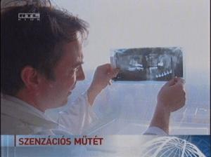 Dr Oberna Fernc arc- és szájsebés a TV-ben