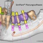 Implantologia computer guidata assistita