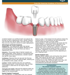 dental implants [ 791 x 1024 Pixel ]