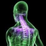 Implantes correctivos de columna vertebral con garantía para toda la vida