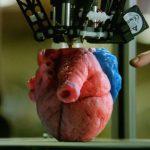 Impresión 3D de órganos para planificación quirúrgica paso a paso
