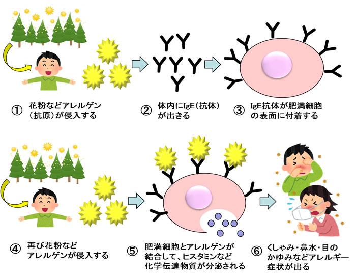 花粉症によるアレルギー発症のメカニズム