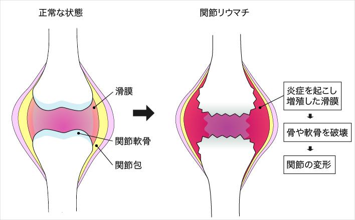 関節リウマチになると関節を覆う滑膜が炎症を起し、そこから異常をきたした免疫細胞が軟骨や骨を攻撃破壊してゆく