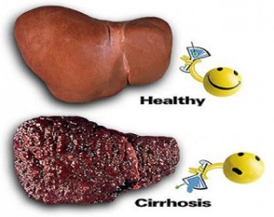Cirrhosis-Of-The-Liver-Treatments-Stages-Causes-Symptoms
