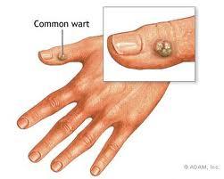 image showing wart on hand finger