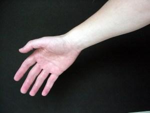 incapacidad permanente absoluta por distrofia facio escapulo humeral