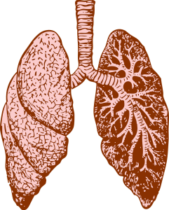 Neumonitis con fibrosis