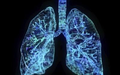 COPD with Chronic Bronchitis: Symptoms, Diagnosis, and Treatment