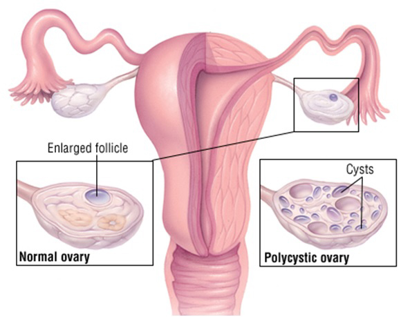Homeopathy for Poly Cystic Ovarian Syndrome