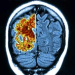 A Longer Window of Time To Delay Alzheimer's Debilitating Effects