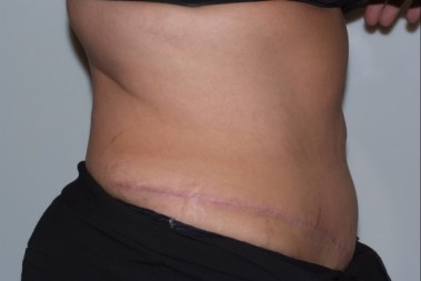 abdominoplasty4,side,after