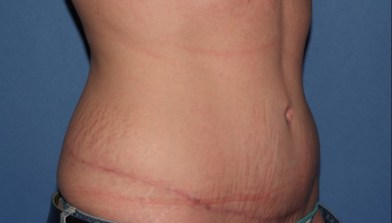 abdominoplasty7,oblique,after