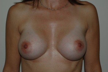 breast aug 1 front after