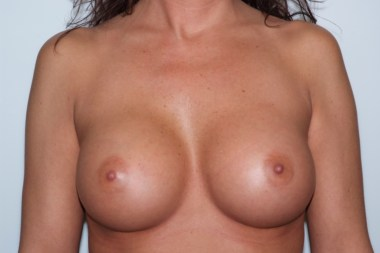 breast aug, front, before after