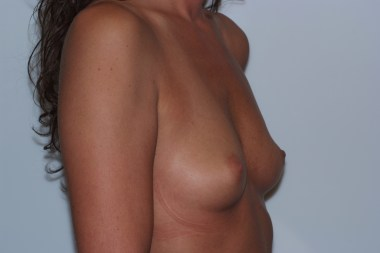 breast aug, oblique,before 10