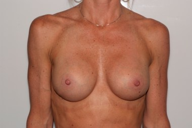 breast aug,front,after 14